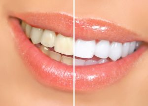 sbiancamento dentale | Studio Dentistico Dott. Cremonini & Dott.ssa Ansaloni