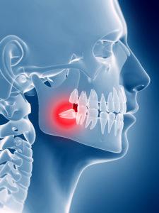 quando togliere il dente del giudizio   Dentista Modena