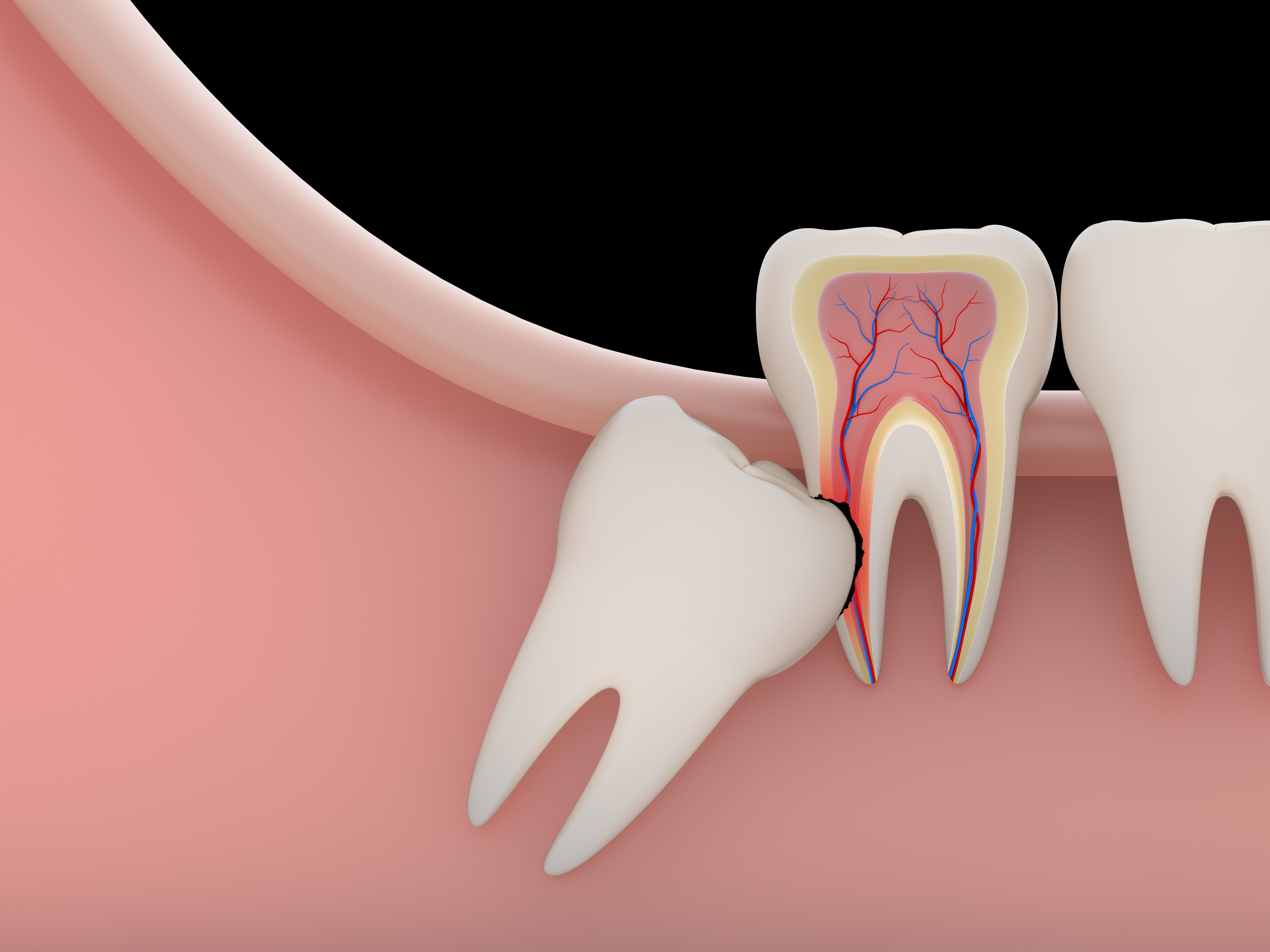quando togliere il dente del giudizio | Dentista Modena